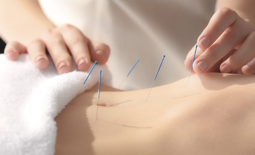 What is Fertility Acupuncture